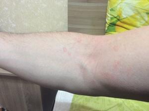 Препараты для лечения кожных заболеваний