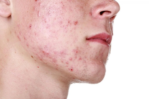 development features and treatment of acne vulgaris New developments in acne treatment: benzoylperoxide, acne vulgaris, treatment of bacterial infections and acne has led to the development of resistance to.