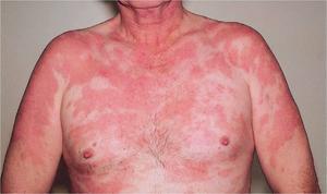 Туберкулёз кожи