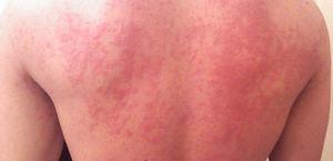 Причины прогрессирования туберкулеза кожи