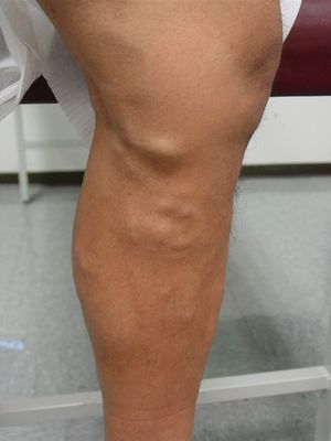 Уплотнения на ноге