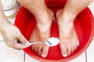 Появление грибка на коже между пальцами ног: причины и симптомы, методы лечения микоза и профилактика