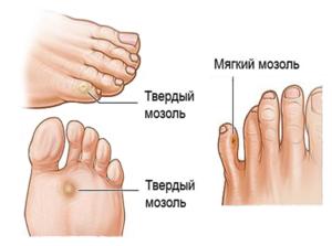 Что делать с мозолью между пальцами ног
