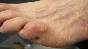 Лечение нароста на пальцах ног