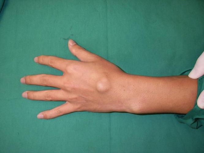 антибиотики при стрептококковой инфекции суставов