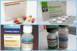 Как лечить фурункулез