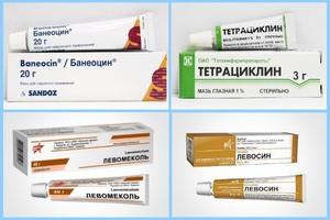 Курс терапии при фурункулеза