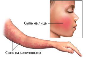 Неинфекционная эритема