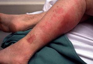 Профилактика рожистого поражения ноги